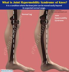 Joint Hypermobility Syndrome of Knee or Double Jointed Knee Chronic Illness, Chronic Pain, Chronic Fatigue, What Are Joints, Ehlers Danlos Hypermobility, Elhers Danlos Syndrome, Double Jointed, Chiari Malformation, Psoriatic Arthritis