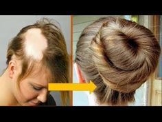 hair loss prevention female natural home remedy, All-natural treatments to stop hair loss and advertise hair growth Hair Loss Causes, Prevent Hair Loss, Grow Long Hair, Grow Hair, Hair Specialist, New Hair Growth, Natural Hair Styles, Long Hair Styles, Hair Loss Women