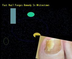 Fast nail fungus remedy in whitestown - Nail Fungus Remedy. You have nothing to lose! Visit Site Now