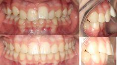 Actual patients of Impressions Orthodontics.