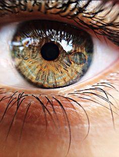 my friend's eye