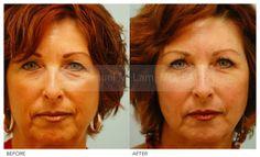Skin Resurfacing - Skin Resurfacing Procedure Photos By Dr Samuel Lam Plastic Surgery Photos, Skin Resurfacing, Facial Rejuvenation, Chemical Peel, 2 Way, Your Skin, How To Remove, Skin Care, Health