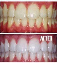 TEETH WHITENING -Toothpaste -1 tsp baking soda -1 tsp peroxide -1/2 tsp water
