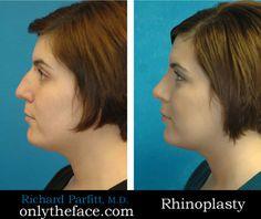 Rhinoplasty (nose job) performed by Dr. Richard Parfitt Madison WI