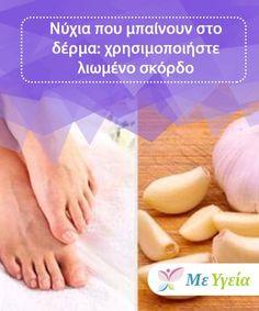 Νύχια που μπαίνουν στο δέρμα: χρησιμοποιήστε λιωμένο σκόρδο  Το σκόρδο μπορείτε να σας βοηθήσει να καταπολεμήσετε τη δυσφορία που προκαλούν τα νύχια που μπαίνουν στο δέρμα, χάρη στις απολυμαντικές του ιδιότητες. Nail Fungus, Toe Nails, Blog, Top, Muscle Pain, Allergies, Home Remedies, Ingrown Nail, Feet Nails