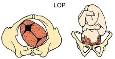 What To Know About Your Baby's Position During Labor and Birth: Left Occiput Posterior (LOP)