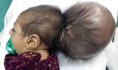 The baby girl born with an extra HEAD: Afghan surgeons perform life-saving surgery to remove part-formed skull Asree Gul, one of twins, was born with an extra head attached to her scalp She had surgery to remove the extra head in what was the most complex operation every to be carried out in the impoverished city of Jalalabad