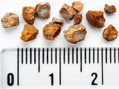 sintomas del acido urico o gota cuales son las causas del acido urico alto alimentos que no se deben comer teniendo acido urico