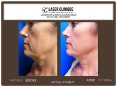 Before and 3 months after Ultherapy, non-surgical face lift treatment performed by Dr. P. Alexander Ataii.