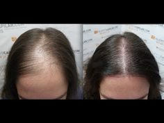 2102 FU's. Hair Transplant by FUE Technique. Female alopecia. Injertocapilar.com. 758/2012 - YouTube