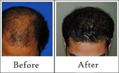 After hair transplant; the scalp is needed to be kept clean and dry to avoid infections or shock loss; however it should be finished extreme gentleness and using only the prescribed and indicated hair product and methods of hair care. It's so important for the newly transplanted grafts to possess a good growth.