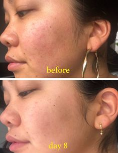 skin face skin no makeup skin requires commitment skin secrets skin tips Beauty Care, Beauty Skin, Beauty Hacks, Face Beauty, Beauty Tips, Skin Secrets, Skin Tips, Love Your Skin, Homemade Face Masks