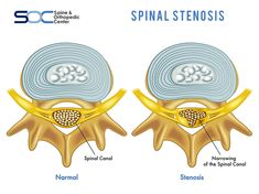 Spinal Stenosis is the narrowing of the spinal canal. This narrowing places pressure on the nerve roots and/or spinal cord, often resulting in pain.  Learn more about #spinalstenosis