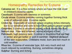 Practical Life Tips For You And Me: #Homeopathy #Remedies for #Eczema