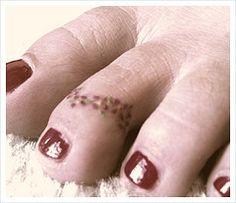 I need a tattoo toe ring.
