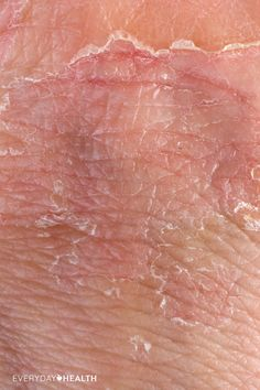 The general cause of itchy, dry skin might seem like a no-brainer: It's a lack of moisture. But where does that lack of moisture come from?