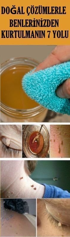 Warts can be fought many ways. You can try natural wart removal remedies. Check this list to find the best natural treatment for your wart. Warts On Hands, Warts On Face, Natural Treatments, Skin Treatments, Skin Tips, Skin Care Tips, Get Rid Of Warts, Remove Warts, Warts Remedy