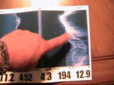 Tips 'n Tricks 19: Humminbird Understanding the Side Imaging View - YouTube