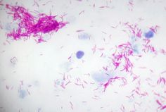 Acid-Fast Staining Sputum::: if a patient has CXR evidence of TB and signs of infection (cough, weight loss)... they should undergo SPUTUM SAMPLE AND CULTURE... if sputum comes back with 3 negative gram stains the patient is considered NONINFECTIOUS, but should still be started on treatment until the sputum culture returns