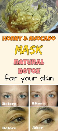 Honey and avocado mask - Natural botox for your skin