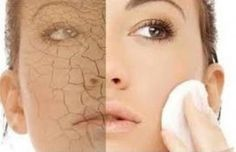 How To Get Beautiful, Soft, Clear, Silky, Smooth, Glowing Skin Fast And Naturally At Home? Best Tips For Dry Skin Care
