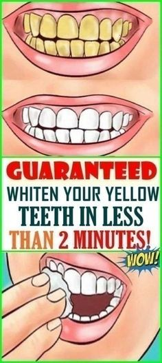 GUARANTEED TEETH WHITENING IN LESS THAN 2 MINUTES! Baking Soda Scrub, Baking Soda And Lemon, Teeth Health, Oral Health, Health Care, Dental Health, Natural Bleach, Benefits Of Coconut Oil, White Teeth