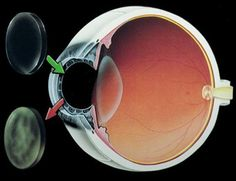 Only the central portion of the cornea is involved in transplantation .The surgeon excises an appropriate circular disc of the patient's cornea and replaces it with a similarly sized disc of donor cornea, which is then sutured into place.