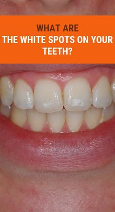 What Are The White Spots On Your Teeth? Health Articles, Health Tips, Health And Wellness, Health Care, Herbal Cure, Herbal Remedies, Natural Remedies, Garlic Health Benefits, Health Tonic