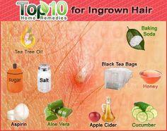 Home Remedies for Ingrown Hair