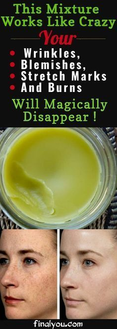 Skin Beauty Remedies Prepare This Mixture Right Now And Your Wrinkles, Blemishes, Stretch Marks And Burns Will Magically Disappear! Piel Natural, Natural Skin, Natural Beauty, Organic Beauty, Home Remedies, Natural Remedies, Beauty Hacks For Teens, Tips Belleza, Belleza Natural