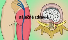 Prírodný domáci liek na odstránenie bolesti sedacieho nervu. Zaručene funguje! Sciatica Relief, Emotional Pain, Organic Beauty, Cholesterol, Listerine, Life Is Good, Healthy Lifestyle, The Cure, Health Fitness