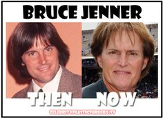 plastic surgery gone wrong | Bruce Jenner: Plastic Surgery Gone Bad « Celebrity Plastic Surgery