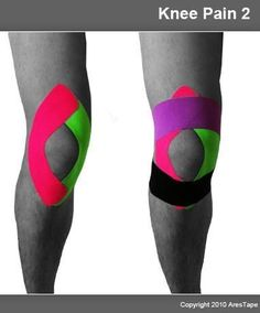 Acupuncture, Knee Taping, Kt Tape Knee, K Tape, Studio Pilates, Home Remedies For Arthritis, Running Injuries, Knee Arthritis, Kinesiology Taping