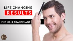 Follicular Unit Extraction, sometimes referred to as follicular unit #transplantation, is the modern #technique of #hair restoration. Just call us at +91-9888099906