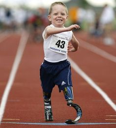 Cody McCasland was delivered prematurely in 2001 missing several bones in his legs, and had other birth defects as well. He was not expected to live for more than a few days. Cody underwent multiple surgeries to correct defects in his organs and limbs. His legs were amputated in 2003. That same afternoon, Cody was caught trying to walk! He was fitted with prosthetic legs and learned to walk immediately -and never looked back. He started using running prosthetics at age five.