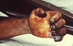 """Bubonic plague infection causes tiny blood vessels in the hands and fingers to clog up and cut off circulation. Without blood, the flesh dies and turns black (called """"gangrene""""). This is why in the Middle Ages bubonic plague was called """"the Black Death."""" In the 14th century it killed an estimated 25 million people, or 30–60% of the European population."""