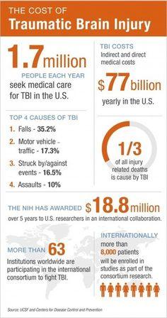 Traumatic Brain Injury Research Advances with $18.8M NIH Award | ucsf.edu