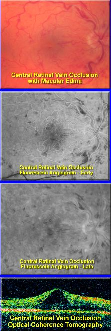 Central Retinal Vein Occlusion (CRVO) with classic retinal hemes, dilated tortuous veins, CWS, macular and disc edema | ISCHEMIC: >10DD of non-perfusion on f.a. with FC or worse VA & 60% developing rubeosis & up to 30% develop Neovasc Glaucoma // NON-ISCHEMIC: 20/40 or better with 10% developing rubeosis and angle neovasc
