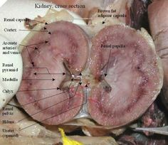 Labeled Kidney: Cross Section Medical Students, Medical School, Nursing Students, Medical Anatomy, Kidney Anatomy, Nursing Notes, Nursing Tips, Medical Science, Mad Science