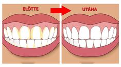 Natural Teeth Whitening Remedies Improper brushing can lead to plaque formation that, when ignored, forms tartar, a solidified form of plaque. Know how to remove tartar Coconut Oil For Teeth, Coconut Oil Pulling, Teeth Whitening Remedies, Natural Teeth Whitening, Gum Health, Dental Health, Oral Health, Teeth Health, Gum Disease Treatment