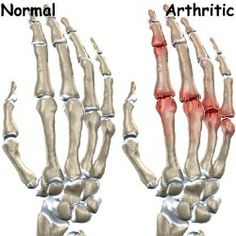 Effective Methods For Treating Arthritis