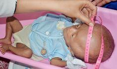 Haisah Bayi Penderita Hidrosefalus ini lahir pada pertengahan Januari lalu. Bayi mungil ini lahir dari Pasangan Sahar dan Nursia, salah satu keluarga miskin yang tinggal di Pulau Tangnga Kelurahan Amassangan, Kecamatan Binuang, Kabupaten Polewali Mandar.