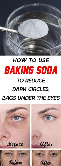 How To Use Baking Soda To Reduce Dark Circles And Bags Under The Eyes. I reduce my dark circles in few days totally recommending. Baking Soda Under Eyes, Baking Soda Dark Circles, Uses For Baking Soda, Reduce Dark Circles, Dark Circles Under Eyes, Eye Cream For Dark Circles, Dark Circle Remedies, Eyeliner, Eyebrows