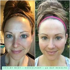 Its never too early to start taking care of your skin and get THE BEST complexion of your life. Glowing skin. Ditch the dullness and sun damage.  #REVERSE #REDEFINE