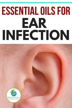 Looking ear infection relief? You may find these essential oils for ear infections helpful for relieving the pain and other associated symptoms. #earinfection #earinfectionreliefremedy #essentialoils #essentialoilsforearinfection #earproblems #earache #earpain