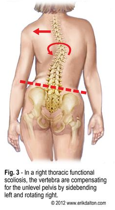 Simplifying Scoliosis Figure3