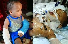 15 month old US baby survived fall from 11 story building