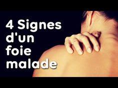 Découvrez les 4 symptômes d'UN FOIE MALADE à ne pas ignorer ! - YouTube