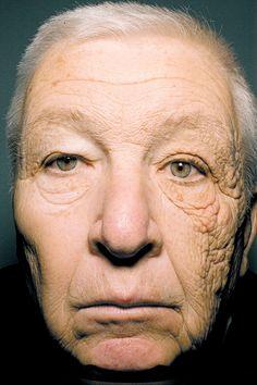 Truck drivin' man, sun exposure to left side of face. WEAR SUNBLOCK!