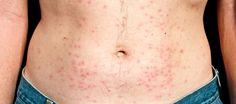 Hot Tub Folliculitis
